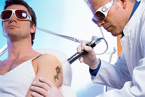 Tattoo Removal Financing